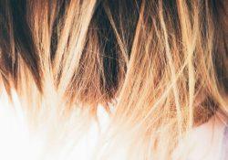 Säker hårtransplantation i Sverige eller Turkiet